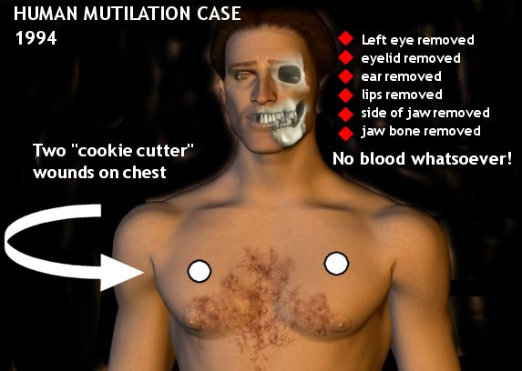 Human Mutilations By Aliens (Warning Graphic) Mute1